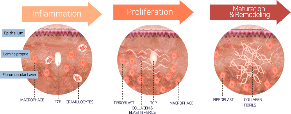 Mechanism of New Collagen Regeneration